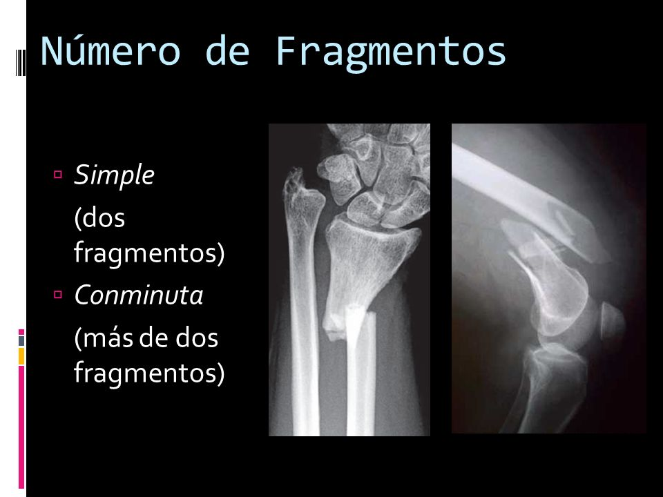 Número de Fragmentos Simple (dos fragmentos) Conminuta