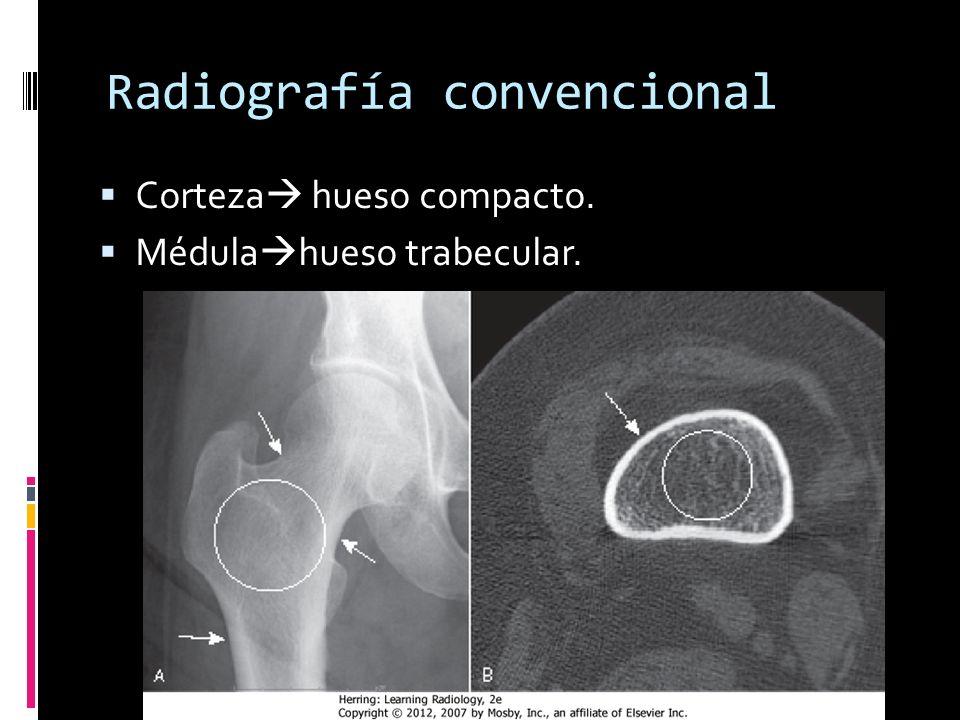 Radiografía convencional
