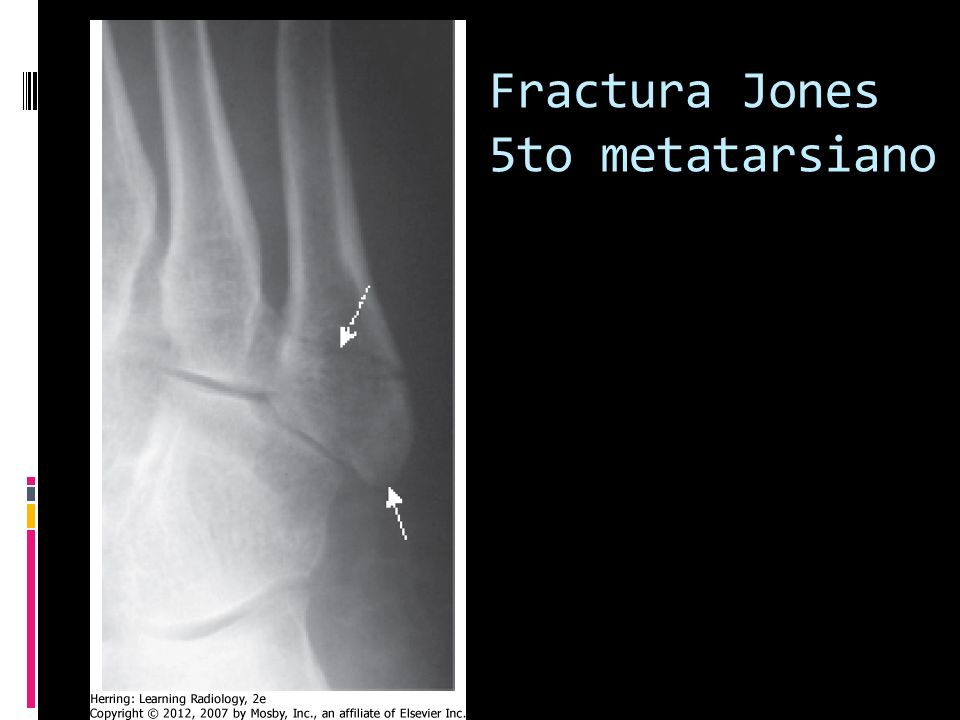 Fractura Jones 5to metatarsiano