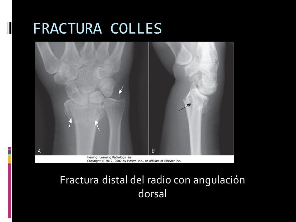 Fractura distal del radio con angulación dorsal