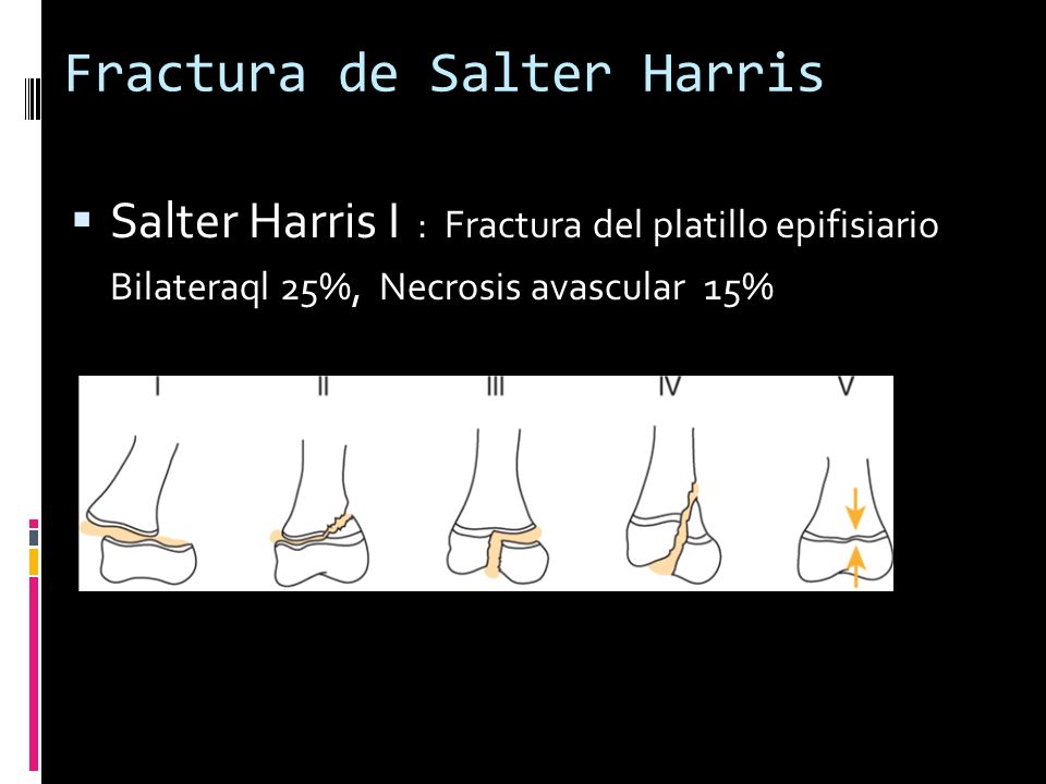 Fractura de Salter Harris