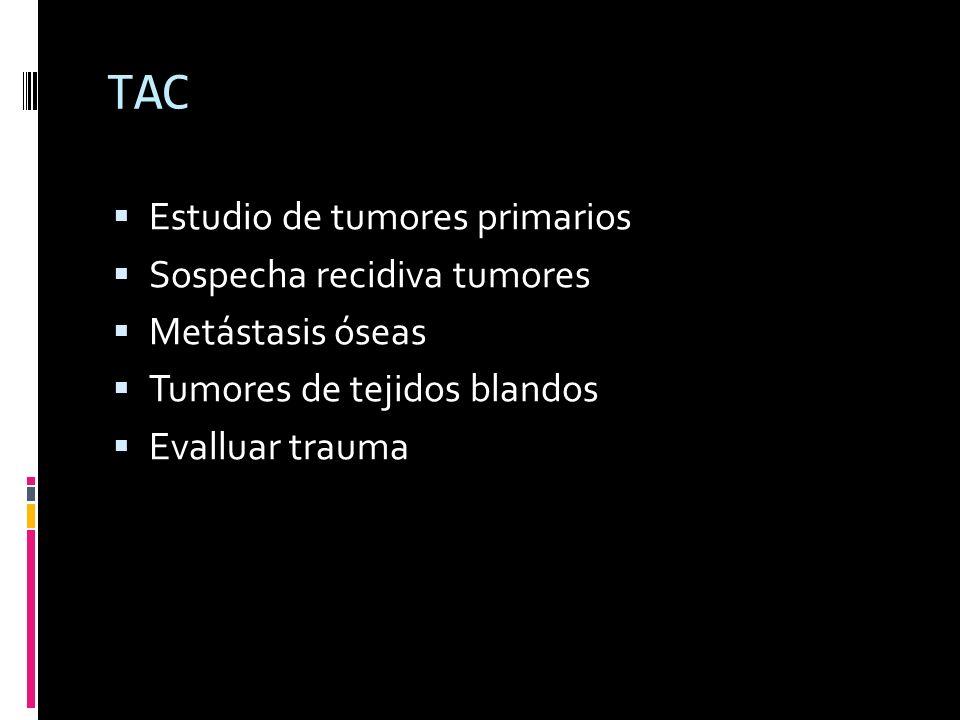 TAC Estudio de tumores primarios Sospecha recidiva tumores