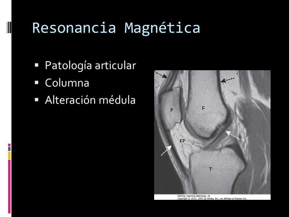 Resonancia Magnética Patología articular Columna Alteración médula