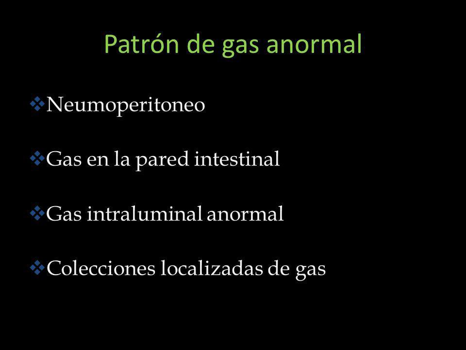 Patrón de gas anormal Neumoperitoneo Gas en la pared intestinal