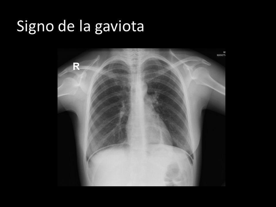 Signo de la gaviotaAire subdiafragmatico que se presenta como zona radiolucida entre el diafragma e hígado, en bipedestación semeja alas de gaviota