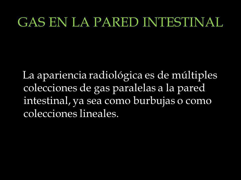 GAS EN LA PARED INTESTINAL
