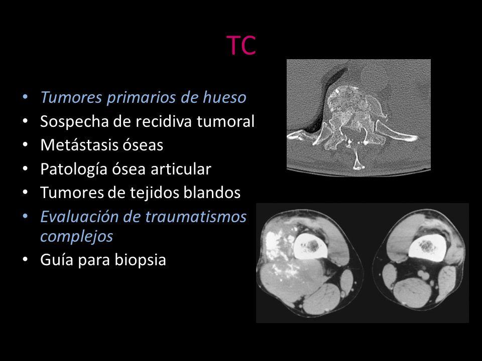 TC Tumores primarios de hueso Sospecha de recidiva tumoral
