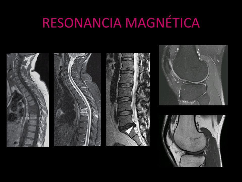 RESONANCIA MAGNÉTICA