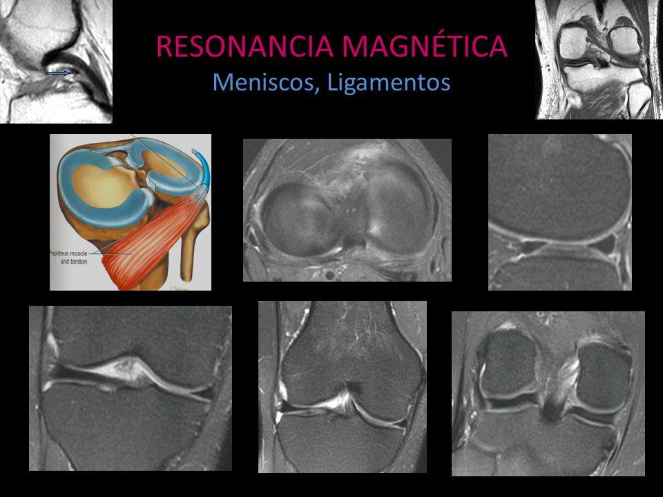 RESONANCIA MAGNÉTICA Meniscos, Ligamentos