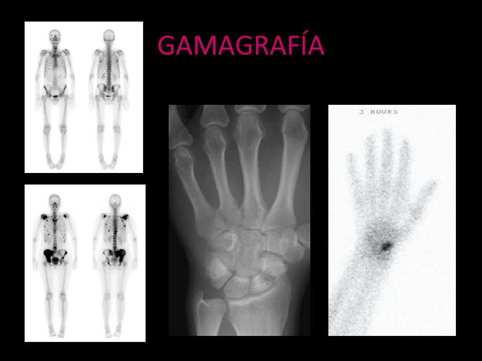 GAMAGRAFÍA