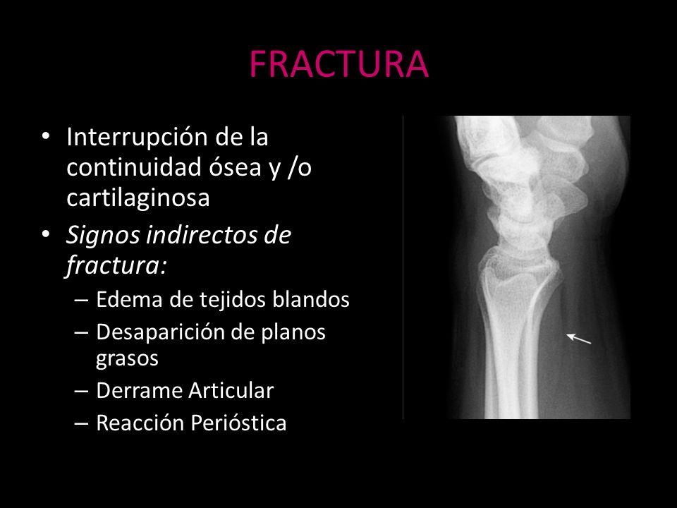 FRACTURA Interrupción de la continuidad ósea y /o cartilaginosa