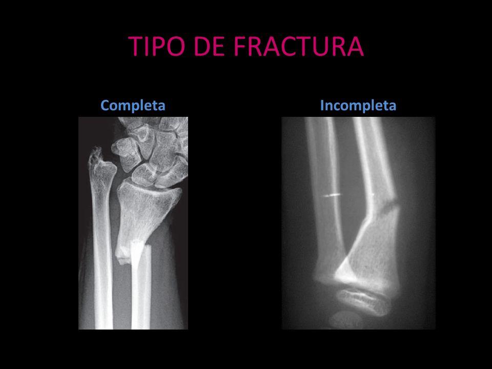 TIPO DE FRACTURA Completa Incompleta