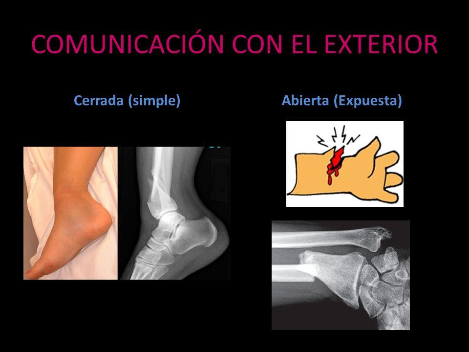 COMUNICACIÓN CON EL EXTERIOR