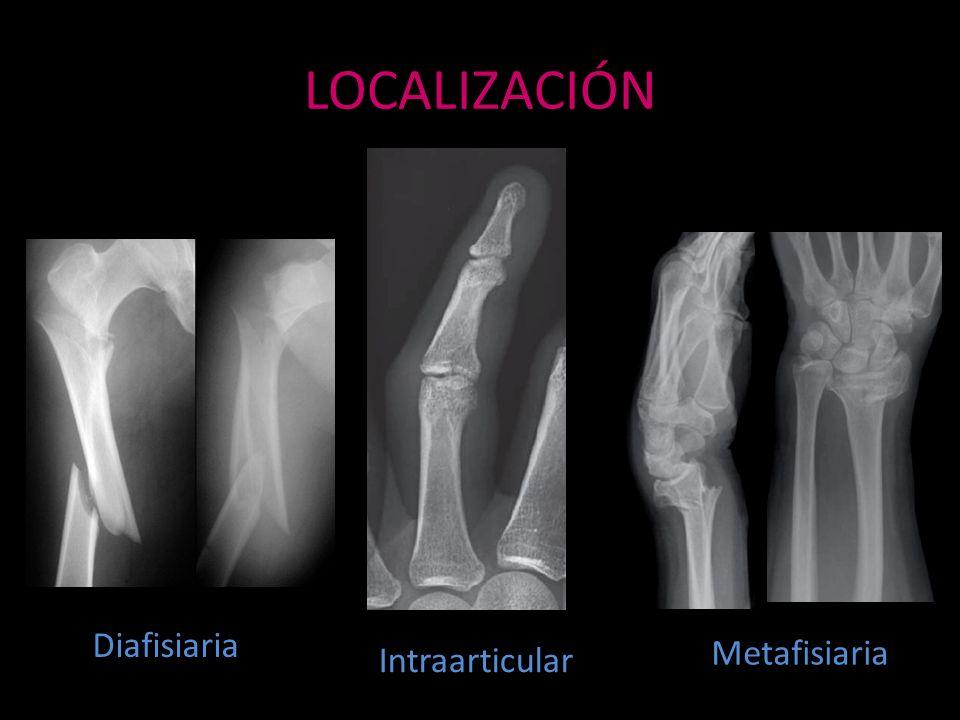 LOCALIZACIÓN Diafisiaria Metafisiaria Intraarticular