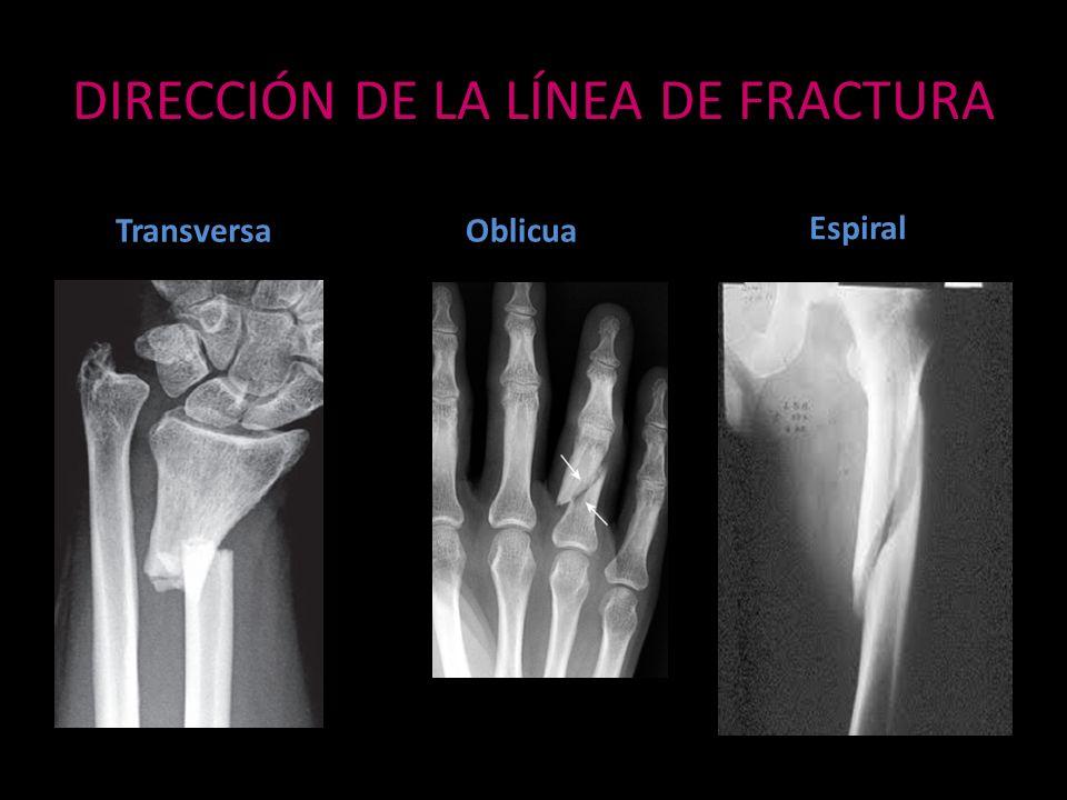 DIRECCIÓN DE LA LÍNEA DE FRACTURA