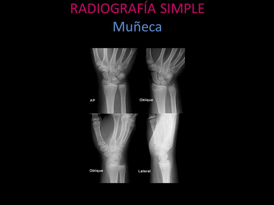 RADIOGRAFÍA SIMPLE Muñeca