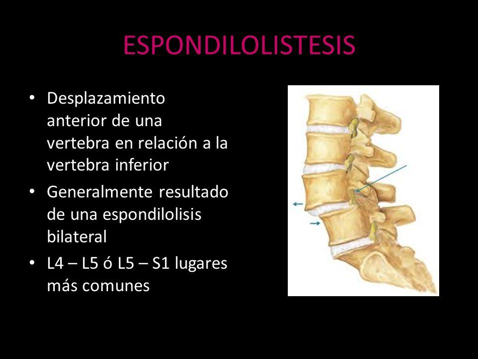 ESPONDILOLISTESISDesplazamiento anterior de una vertebra en relación a la vertebra inferior. Generalmente resultado de una espondilolisis bilateral.