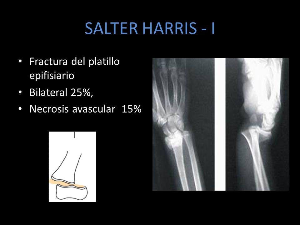 SALTER HARRIS - I Fractura del platillo epifisiario Bilateral 25%,