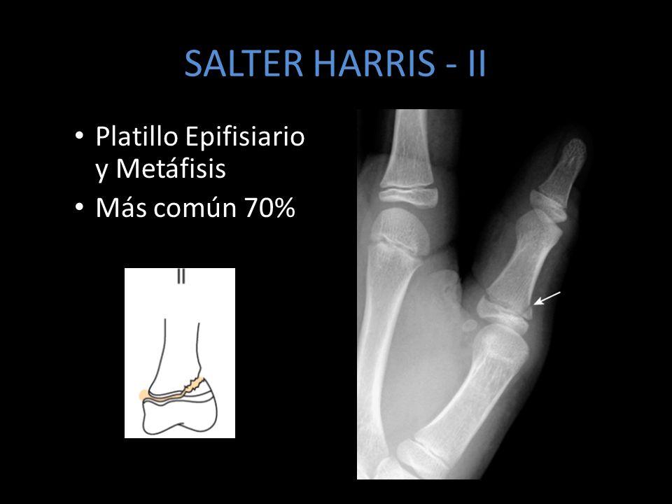 SALTER HARRIS - II Platillo Epifisiario y Metáfisis Más común 70%