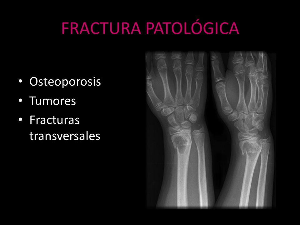 FRACTURA PATOLÓGICA Osteoporosis Tumores Fracturas transversales