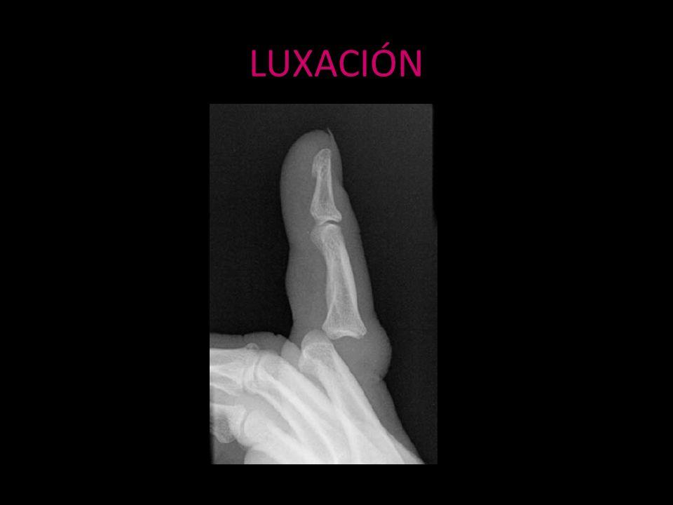 LUXACIÓN