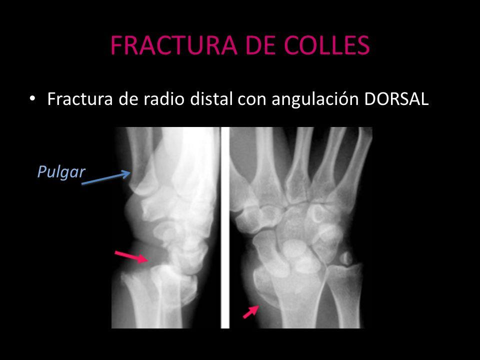 FRACTURA DE COLLES Fractura de radio distal con angulación DORSAL