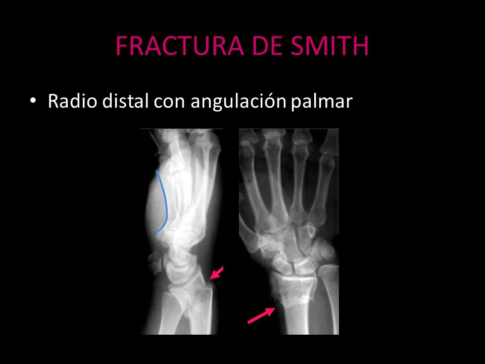 FRACTURA DE SMITH Radio distal con angulación palmar