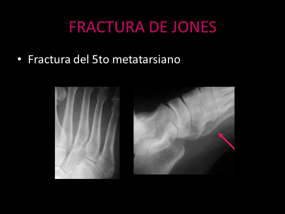 FRACTURA DE JONES Fractura del 5to metatarsiano