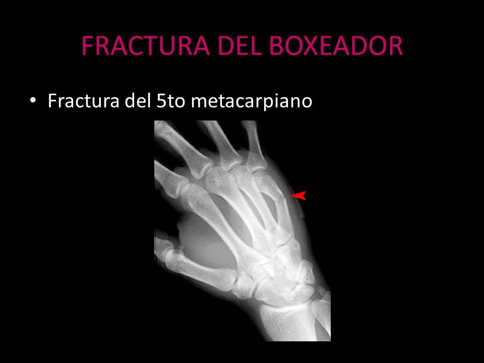 FRACTURA DEL BOXEADOR Fractura del 5to metacarpiano