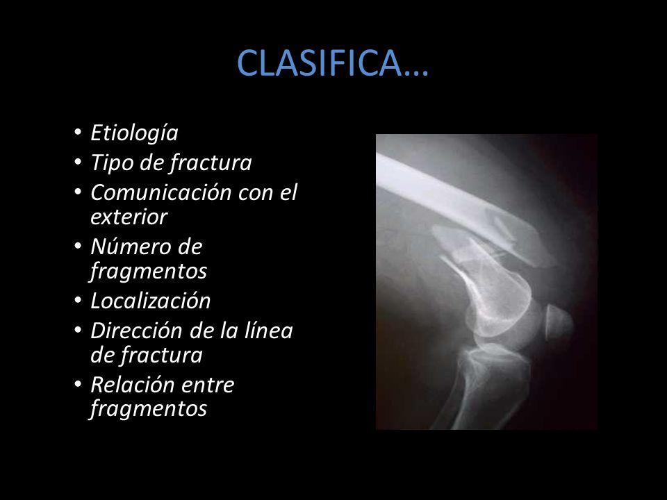 CLASIFICA… Etiología: Traumatismo Tipo de fractura: Completa