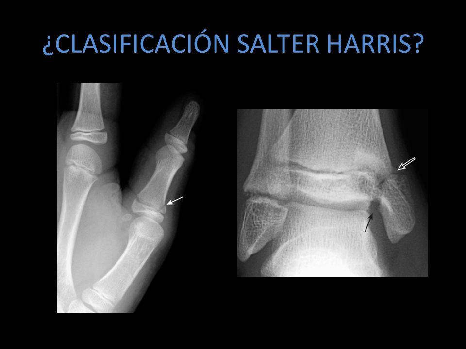 ¿CLASIFICACIÓN SALTER HARRIS