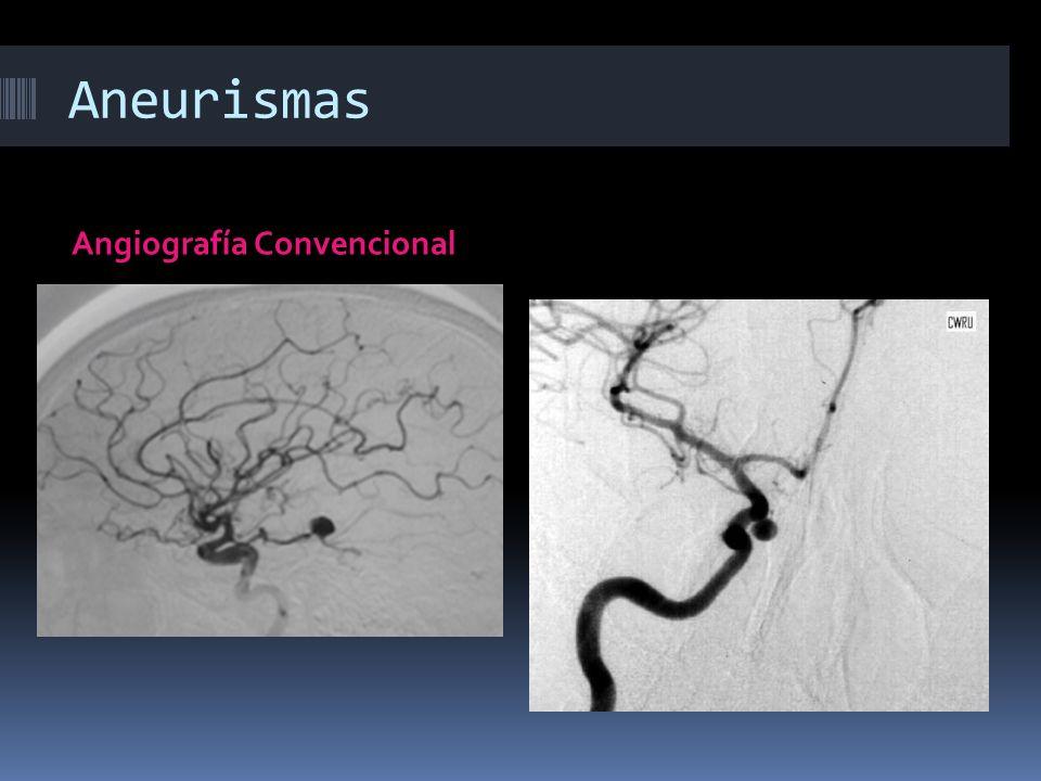 Aneurismas Angiografía Convencional