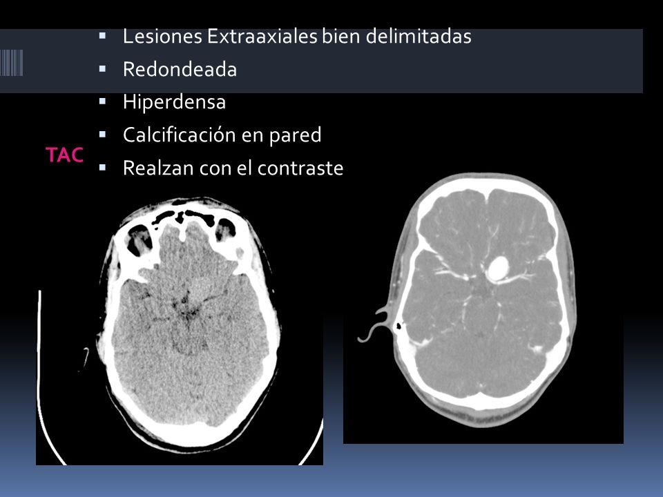 Lesiones Extraaxiales bien delimitadas
