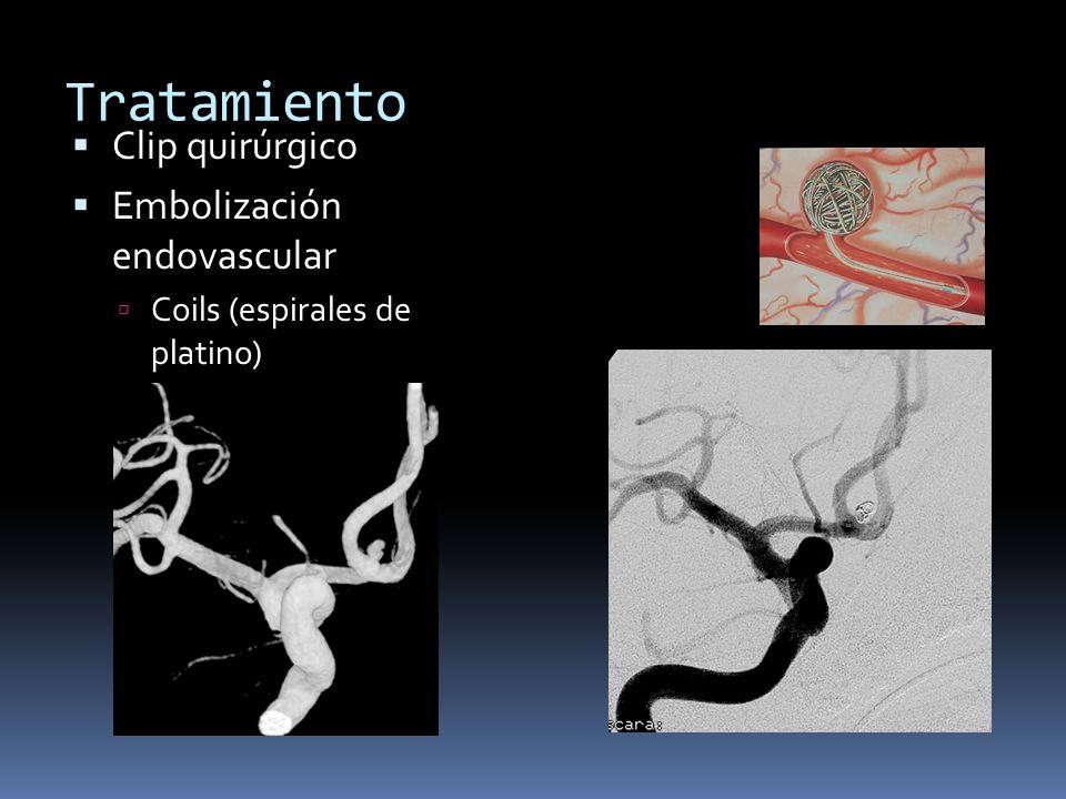 Tratamiento Clip quirúrgico Embolización endovascular