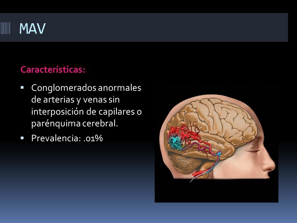 MAV Características: Conglomerados anormales de arterias y venas sin interposición de capilares o parénquima cerebral.
