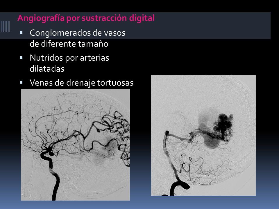 Angiografía por sustracción digital
