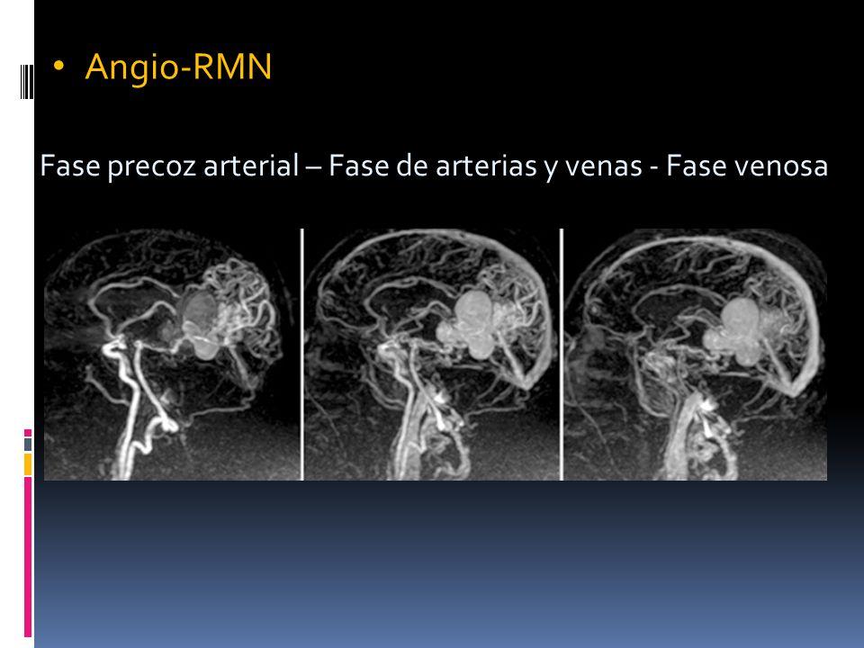 Angio-RMN Fase precoz arterial – Fase de arterias y venas - Fase venosa