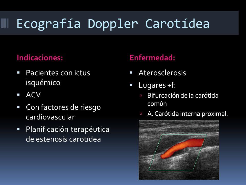 Ecografía Doppler Carotídea