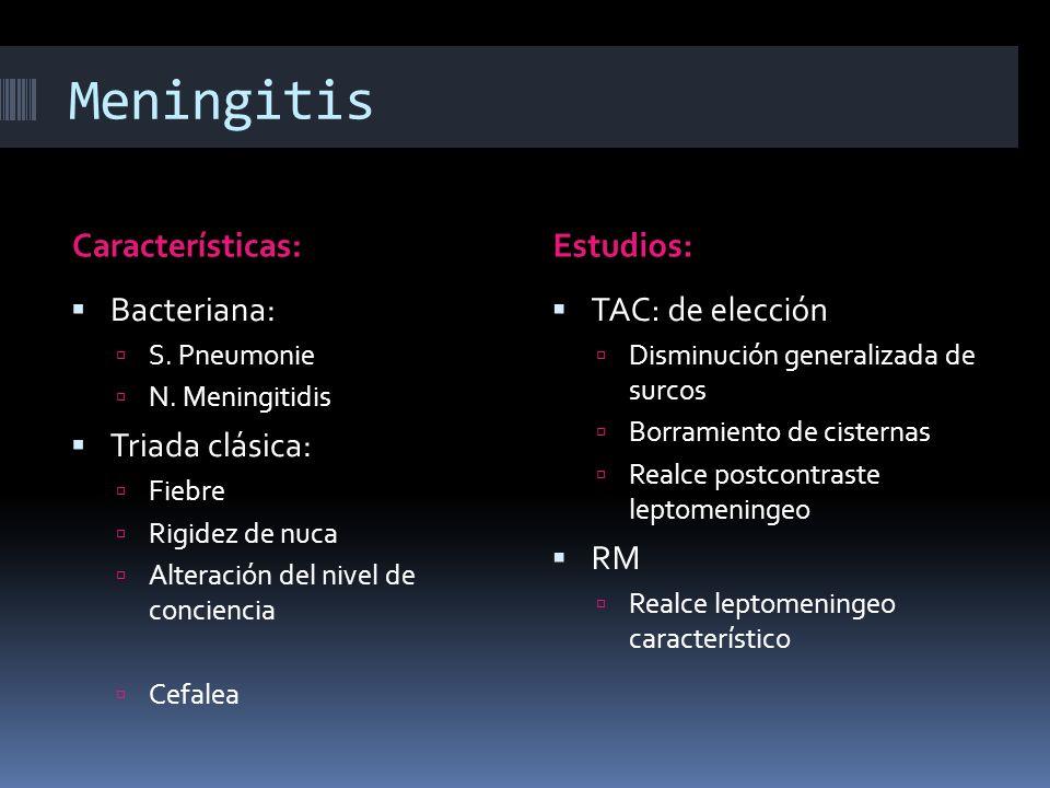 Meningitis Características: Estudios: Bacteriana: Triada clásica: