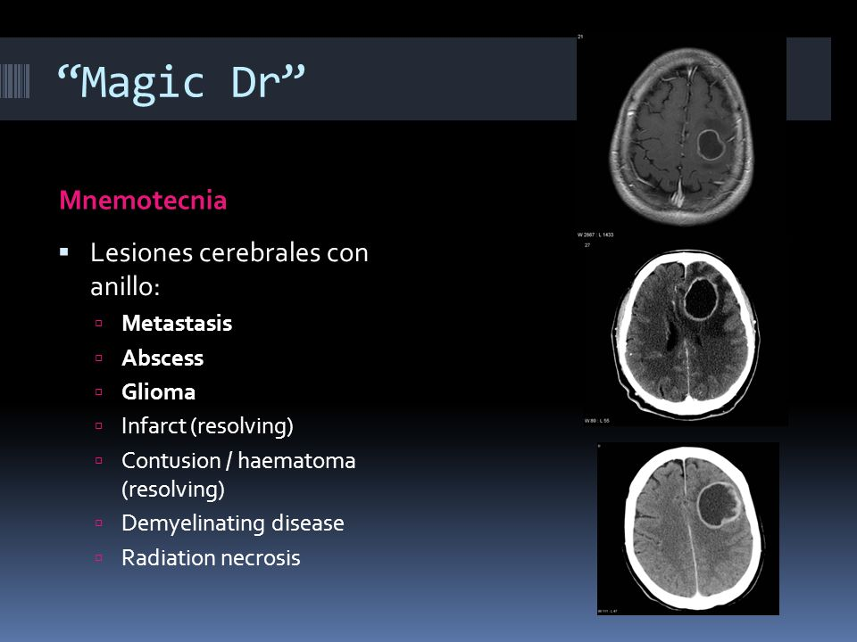 Magic Dr Mnemotecnia Lesiones cerebrales con anillo: Metastasis