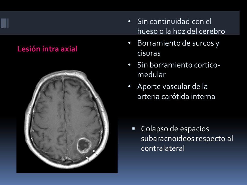 Sin continuidad con el hueso o la hoz del cerebro