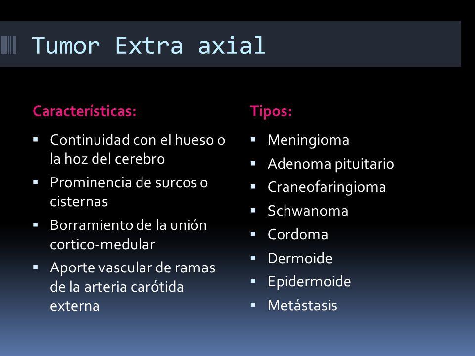 Tumor Extra axial Características: Tipos: