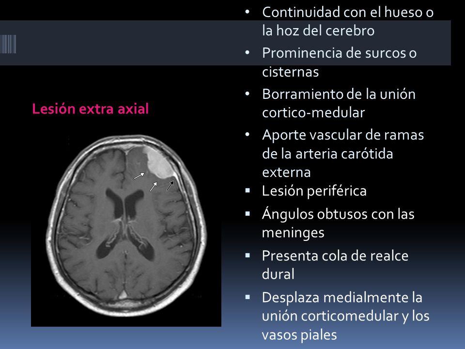 Continuidad con el hueso o la hoz del cerebro