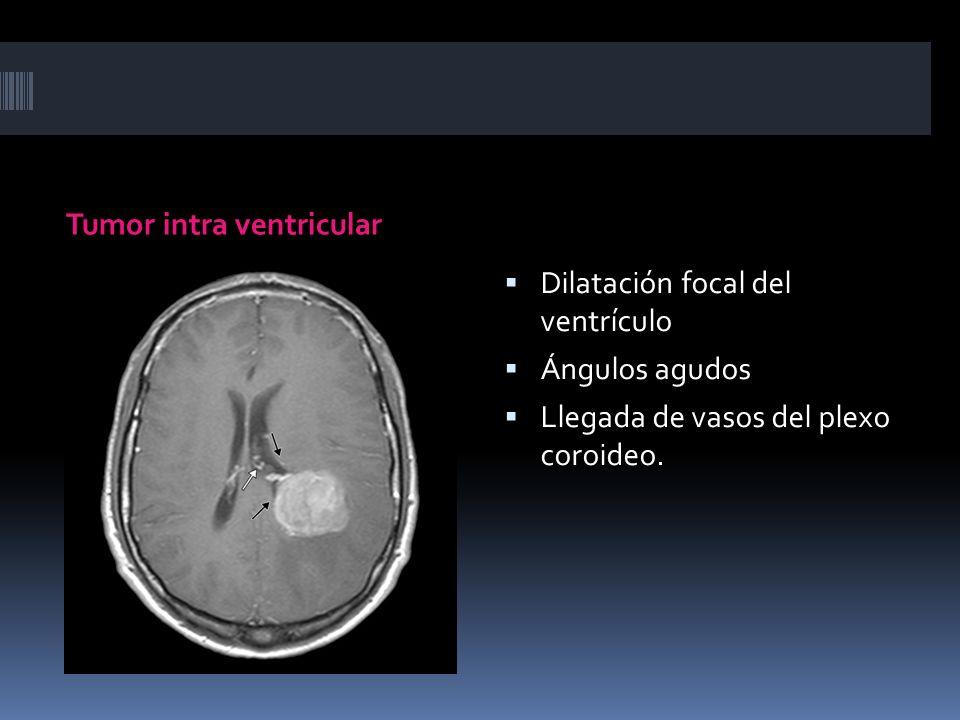 Tumor intra ventricular