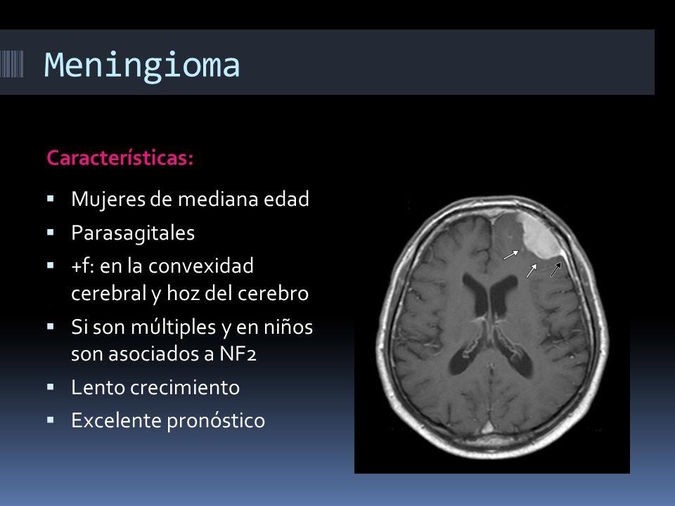 Meningioma Características: Mujeres de mediana edad Parasagitales