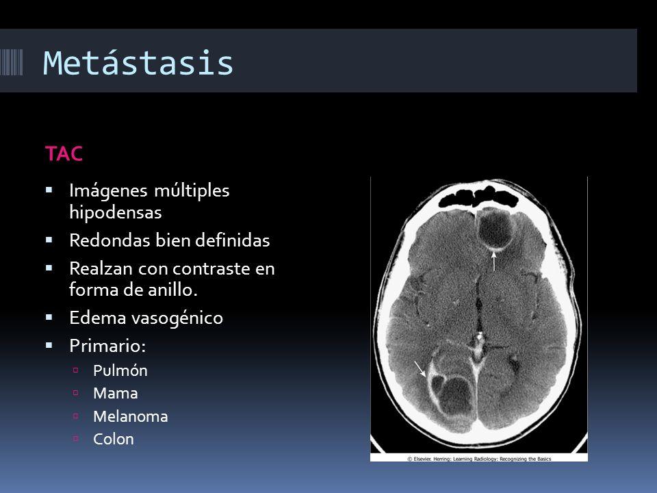 Metástasis TAC Imágenes múltiples hipodensas Redondas bien definidas