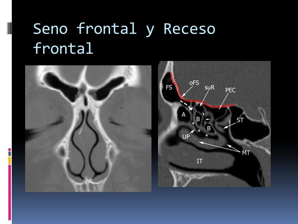 Seno frontal y Receso frontal