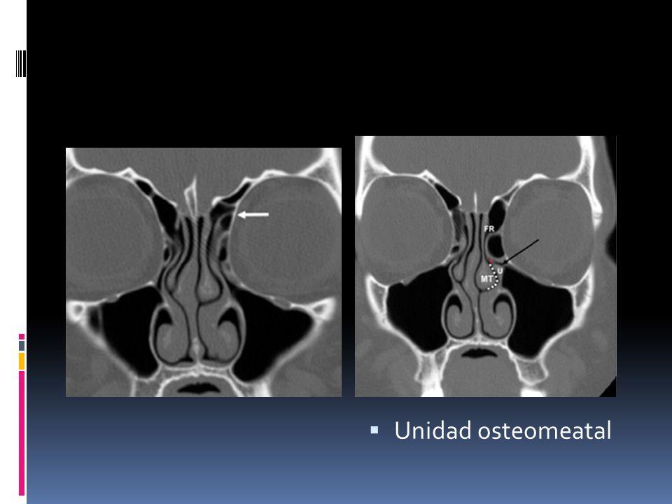 Unidad osteomeatal a) Lámina papirácea del etmoides