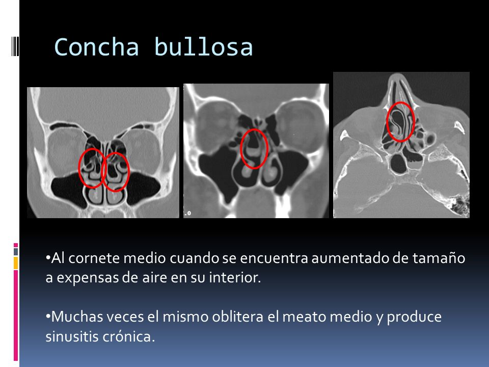 Concha bullosa Concha Bullosa (diferentes pacientes) Bilateral concha bullosa, larger on the left.