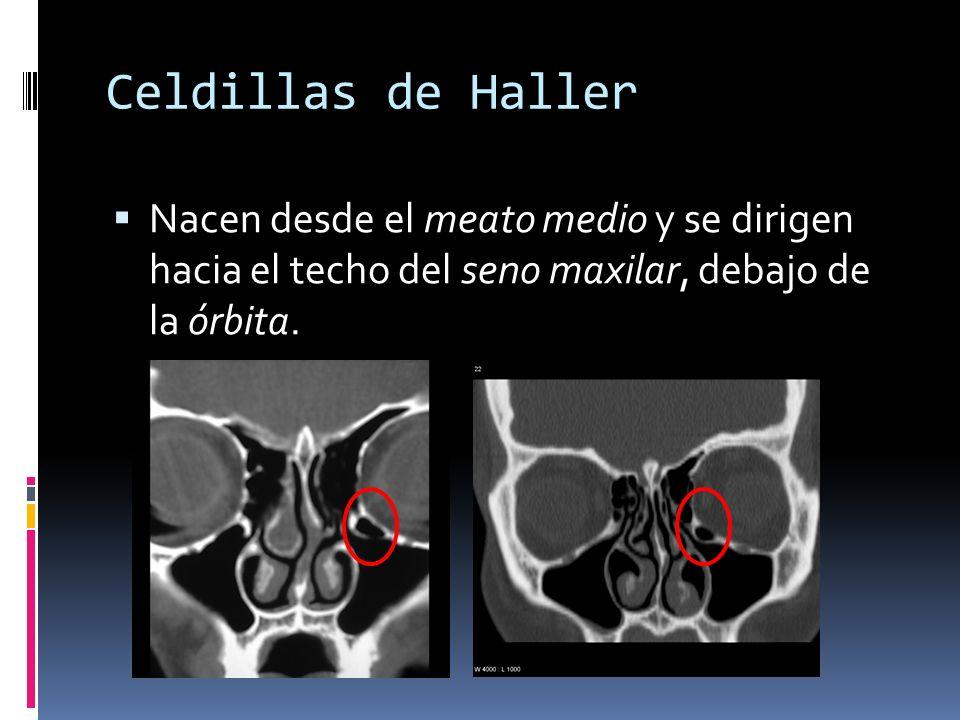 Celdillas de HallerNacen desde el meato medio y se dirigen hacia el techo del seno maxilar, debajo de la órbita.